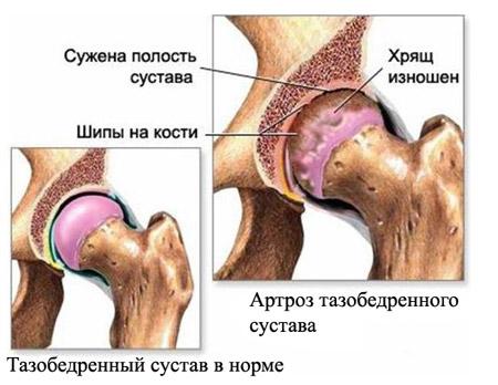 Эндопротезирование тазобедренного сустава.
