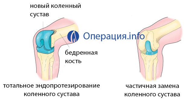 Цены на эндопротезирование коленного сустава