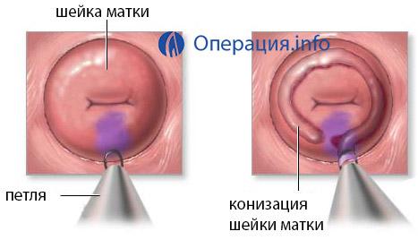 Электроконизация шейки матки при дисплазии послеоперационный период