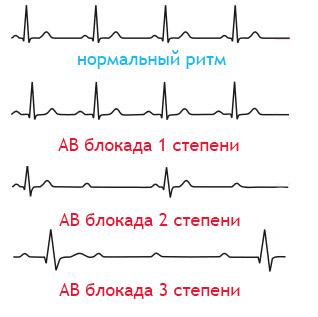 Операция по установке кардиостимулятора