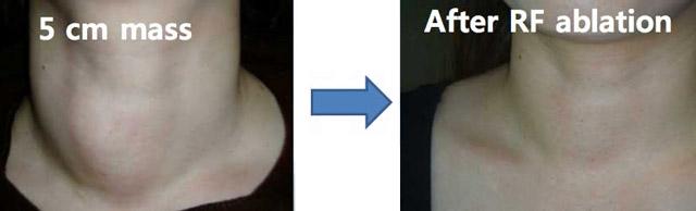 Удаление щитовидной железы как называется операция