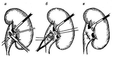 Удаление кисты почки: операция, лапароскопия