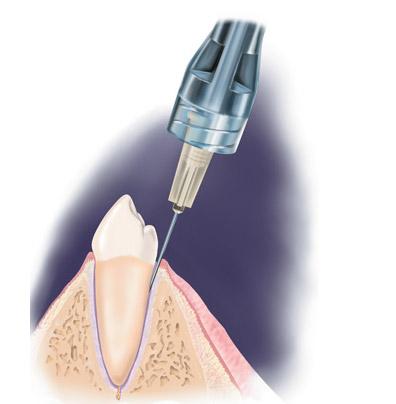 Инфильтрационная анестезия в стоматологии: проводниковая, на нижней и верхней челюсти