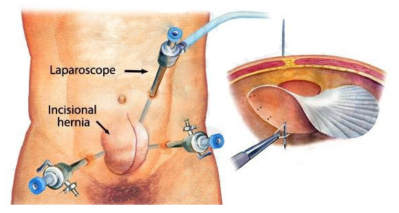Лапароскопическая герниопластика паховой грыжи видео