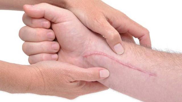 Как убрать шрам после операции, средства для их удаления