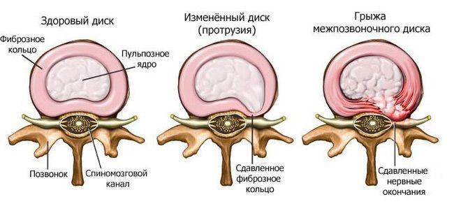 Дискэктомия грыжи межпозвоночного диска