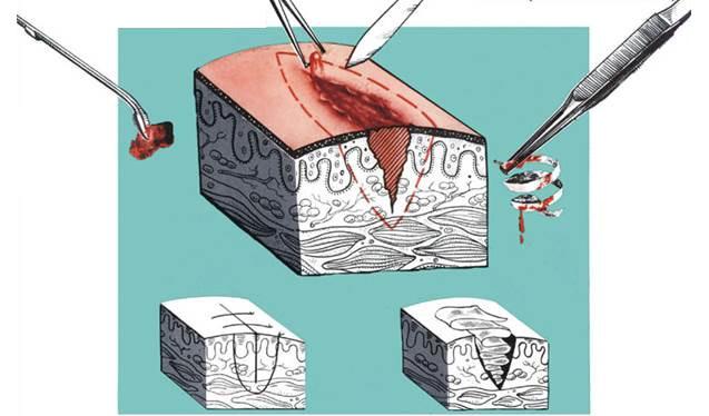 Этапы и техника наложения вторичных швов на рану