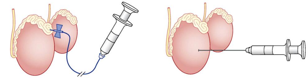 Биопсия яичка у мужчин - шанс на отцовство!