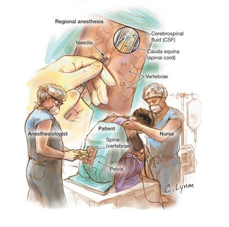 Анестезия проводниковая и инфильтрационная разница