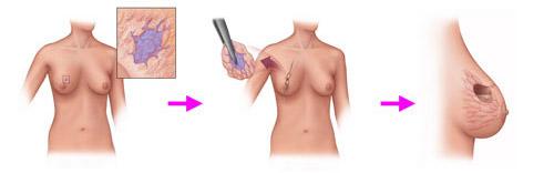 Секторальная резекция молочной железы удаление фиброаденомы