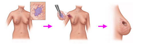 При каких размерах удаляют фиброаденому молочной железы