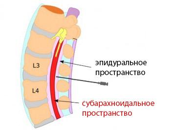 Показания и противопоказания к спинномозговой анестезии
