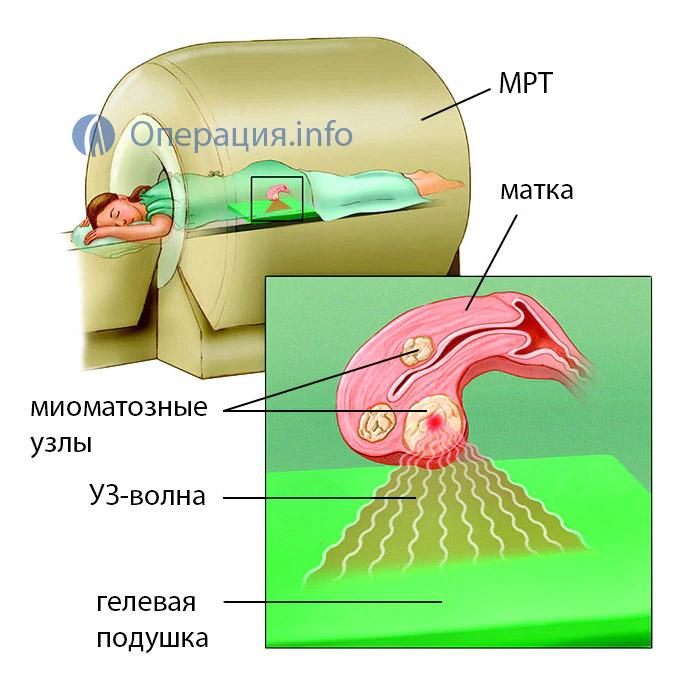 Миома матки - операция и лечение в Москве, стоимость лечения миомы матки