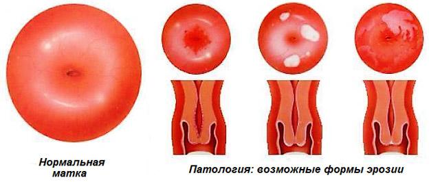 Радиохирургическое лечение шейки матки 17