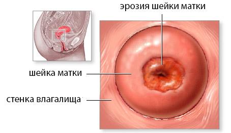 Радиохирургическое лечение шейки матки 15