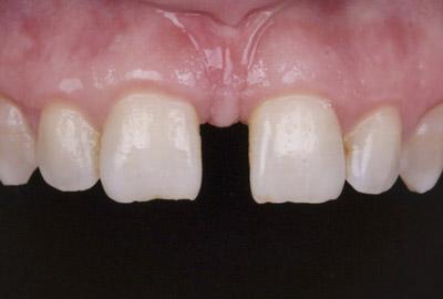 Пластика уздечки верхней губы операция которая избавит от эстетических дефектов