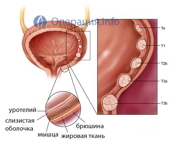 Трансуретральная коагуляция мочевого пузыря