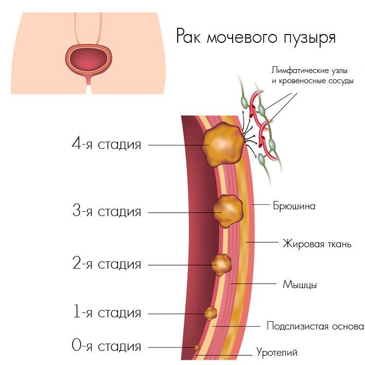 ТУР мочевого пузыря - что это такое, проведение и послеоперационный период после трансуретральной резекции и ТУР-биопсии мочевого пузыря
