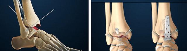 Репозиционный артродез правого голеностопного сустава