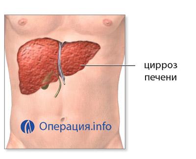 Пересадка печени при циррозе в россии цена