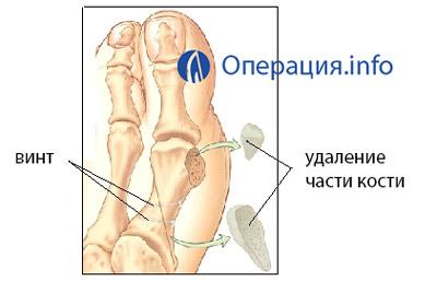 Изображение - Операция на суставе стопы 34657364756377737