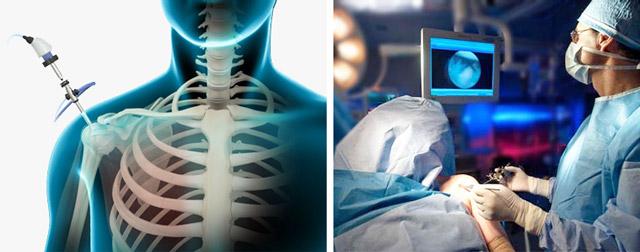Изображение - Артроскопия плечевого сустава клиника 4576874586749857698799