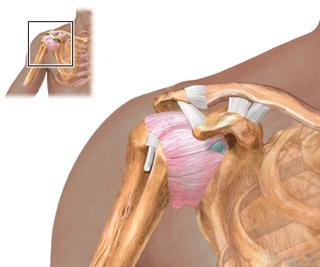 Изображение - Пластика плечевого сустава 45837458377999