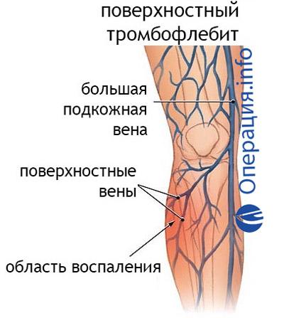 Операция троянова тренделенбурга ход операции