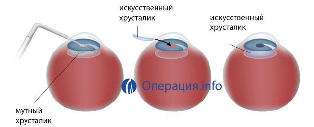 Миопия высокой степени с астигматизмом операция thumbnail