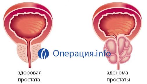 Операция тур аденомы простаты ход операции