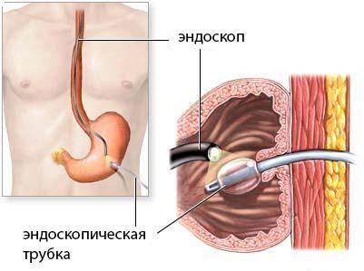 Катетер в желудок при раке желудка thumbnail