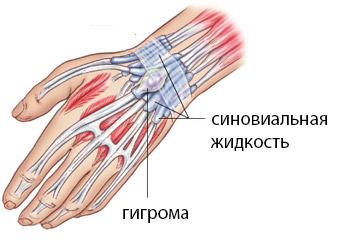 Изображение - Удаление гигромы на голеностопном суставе 4859385093840958080