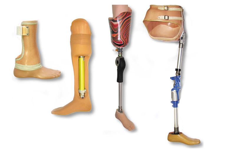 различные протезы, применяемые после ампутации