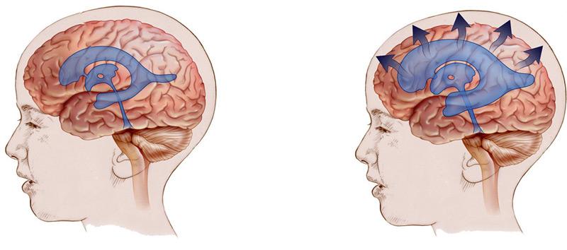 при гидроцефалии (справа) избыточный ликвор вызывает повышенноге давление в черепной коробке