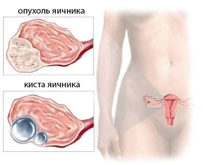 Удаление левого яичника
