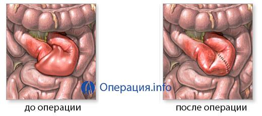 Операции при острая кишечная непроходимость thumbnail