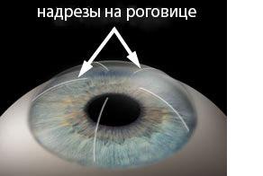 Астигматизм лечение микрохирургия глаза thumbnail