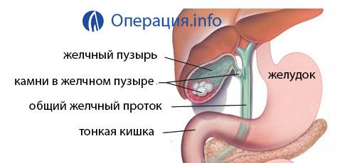 Как вида операции есть для удаление камней в желчном пузыре thumbnail