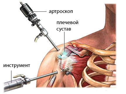 Изображение - Артроскопия плечевого сустава клиника 849834098503984000