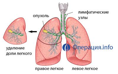 Операции на легких и бронхах thumbnail