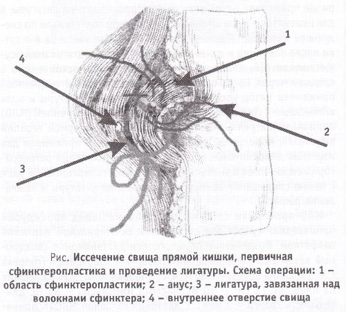 Иссечение свища с зашиванием раны. Варианты иссечения свища с зашиванием раны.
